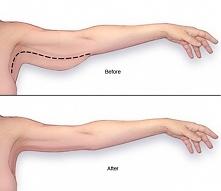 Sposoby – jak wyszczuplić obwisłe ramiona? KLIK