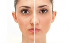 Może być zastosowana bezpośrednio na skórę albo może być zawarta w mieszaninie z innymi składnikami. Możesz pocierać twarz za pomocą skórki z cytryny, jeśli chcesz dodaj troszkę...