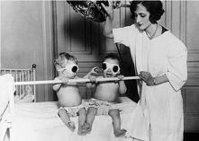 21 najbardziej przerażających rzeczy z historii medycyny
