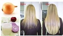 Sok z cebuli działa na wypadanie i porost włosów, ponieważ pobudza krążenie dotleniając cebulki. Efekt ze zdjęcia jest po półrocznym stosowaniu, ale jest. Są dwa podstawowe spos...