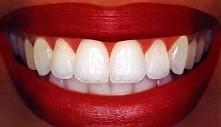 Znacie jakieś domowe sposoby na ładne, białe zęby? Jakie macie doświadczenie z paskami wybielającymi, pastami, żelami ? Jakiej były firmy i czy dały efekty? Miały jakieś skutki ...
