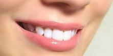 Chciałabym wybielić zęby al...