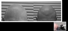 MIKROPIGMENTACJA SKÓRY GŁOWY - zabieg rozwiązujący problemy łysienia u kobiet i mężczyzn. Stanowi bezpieczną metodę łagodzenia negatywnych skutków łysienia. Zabieg mikropigmenta...