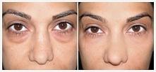 Masz worki pod oczami? Użyj sody oczyszczonej, efekt jest NIESAMOWITY! Kliknij w obrazek i zobacz jak tego dokonać