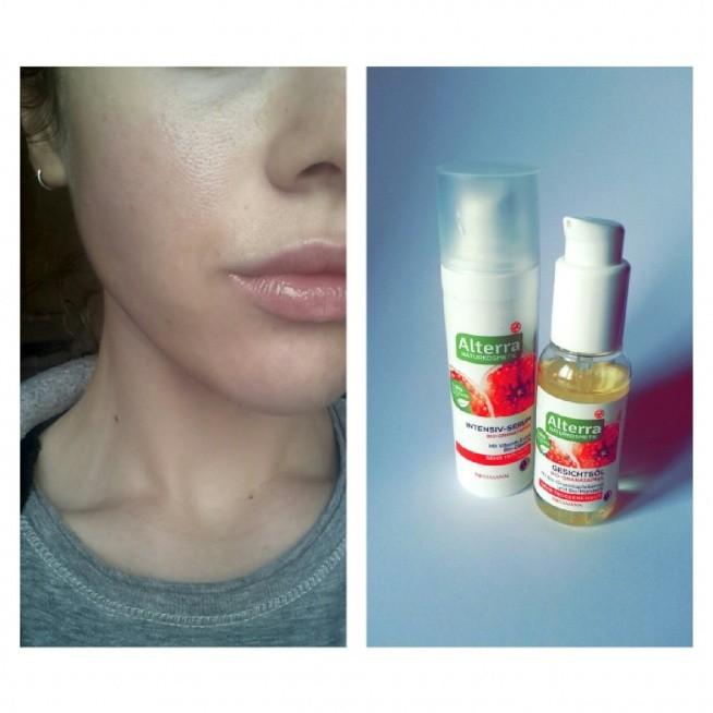 Naprawdę polecam! Dwa tygodnie temu do pielengnacji twarzy wlaczylam olejek oraz serum z Alterra do cery suchej. Efekty są świetne, moja sucha skóra jest nawilżona, niedoskonałości znikają, przebarwienia po trądzikowe również. :) instagram : asiabialy zapraszam :)