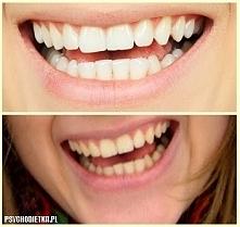 """""""O czym warto pamiętać wybielając zęby? 1. Idziemy do dentysty! Wiem, wiem… To nieuniknione. Sprawdzamy stan zębów i leczymy ubytki. Informujemy, że chcemy wybielać zęby – ..."""