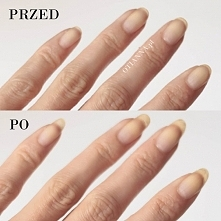 Jak szybko i łatwo zapuścić mocne paznokcie? <3 kliknij w zdjęcie Oto 5 sp...