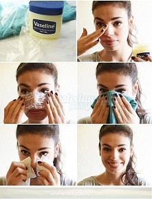 domowy sposób na wagry 1. Posmaruj nos wazelina kosmetyczną 2. Przykryj ppsmarowany nos folia sporzywcza 3. Odczekaj 10 minut 4. Przykladaj przez kilka minut do nosa ciepły recz...