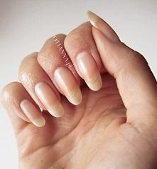 Jakie są przyczyny rozdwojonych paznokci? Kliknij w zdjęcie!