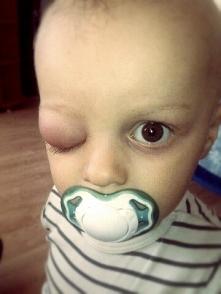 Bardzo proszę społeczeństwo o dobrych serduszkach o pomoc dla tego małego aniołka ;)
