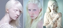Nietypowe piękno czy słów kilka o Albinizmie na blogu po kliknięciu w zdjęcie <3