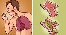 Zwykle śluzu z płuc można p...