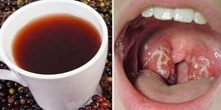 Jak pozbyć się infekcji gardła naturalnie w zaledwie 4 godziny Przyczyny infe...
