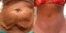Przepis na glinkę ujędrniająca skórę na brzuchu. Plus VIDEO.