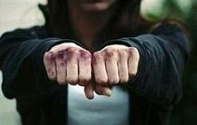 ból fizyczny pomógł mi ukoić ból psychiczny. blizny posiadam na psychice po t...