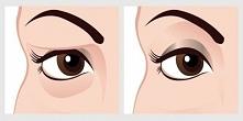 Naturalny środek na opadające powieki – wyniki zauważysz już po 2 minutach! J...