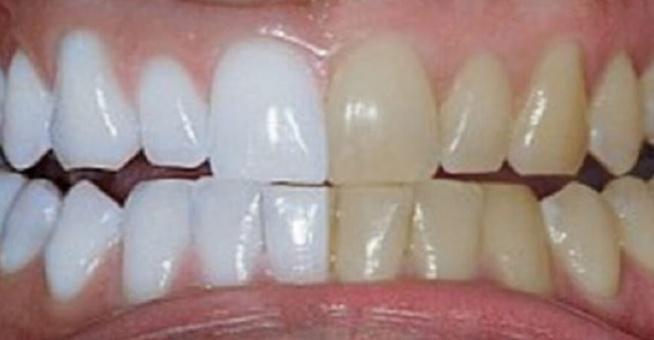 Jak samodzielnie wybielić zęby  W tym sposobie nie ma niczego magicznego, opiera się on na sprawdzonych naturalnych składnikach, które pomogą nam w wybieleniu zębów i odświeżeniu naszego uśmiechu. Jednym z nich jest kurkuma. Kurkuma ma silnie właściwości przeciwzapalne dlatego pomaga nam dbać o zdrowie naszych dziąseł i jamy ustnej. Jest też silnym przeciwutleniaczem i działa przeciwgrzybiczo i przeciwbakteryjnie, ale nas bardziej interesuje jej właściwość wybielająca. Ma ona intensywny żółty kolor dlatego może się wydawać dziwne, że za jej pomocą możemy wybielić zęby.  Jednak postanowiłam wypróbować ten sposób i przez 3 tygodnie 3 razy dziennie korzystałam z kurkumy i to naprawdę działa. Zęby są zauważalnie bielsze. Problemem jest tylko czyszczenie za każdym razem żółtego osadu na umywalce bo nie można go zostawić.  Kolejnym składnikiem jest olej kokosowy. Ma bardzo podobne właściwości i również pomaga dbać o zdrowie naszej jamy ustnej oraz pomaga w profilaktyce przeciw próchnicy. Skorzystamy z tego, ale też chodzi o jakiś tłuszcz, który pozwoli nam zagęścić kurkumę i stworzyć z niej konsystencję pasty do zębów. Na koniec dodamy też parę kropli olejku miętowego aby miała ona odświeżający zapach. Pasta wybielająca zęby z kurkumy Składniki      1 łyżka oleju kokosowego     1 łyżeczka kurkumy     olejek miętowy  Przygotowanie  Wszystkie składniki połącz, musi z nich powstać pasta. Olej kokosowy możesz trochę rozrzedzić chwilę go podgrzewając. Całe wykonanie jest bardzo proste. Następnie myjemy pastą z kurkumy zęby tak jak zwykłą pastą do zębów. Zęby szczotkujemy przez przynajmniej 3 minuty, a następnie dobrze wypłukujemy usta z resztek kurkumy. Po 3 tygodniach kuracji i myciu zębów codziennie 2-3 razy w ciągu dnia zobaczysz znaczne efekty. Twój uśmiech stanie się biały i to całkiem tanio i naturalnie. Oprócz tego zadbasz również o zdrowie jamy ustnej i zapobiegniesz próchnicy.  Po kuracji pastę nadal profilaktycznie co jakiś czas możesz stosować, ale nie musisz już te