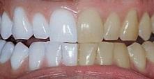 Jak samodzielnie wybielić zęby  W tym sposobie nie ma niczego magicznego, opi...