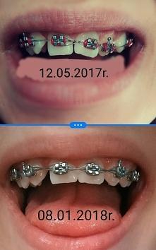 Taka dla mnie kolosalna różnica. Różnica 8 miesięcy, zleciało jak miesiąc. Ja...