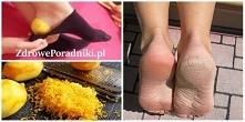 Użyj peelingu z cytryny, aby mieć piękne stopy