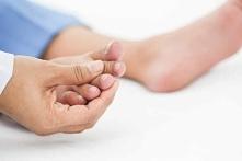 Wrastający paznokieć - Jak go leczyć?