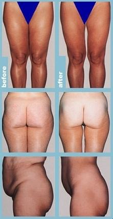 Kto ma ochotę na redukcję cellulitu? :)  Zapraszam na mój blog, podam Ci goto...