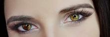 Heterochromia różnobarwność tęczówki