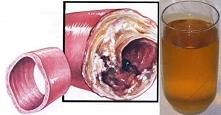 Tylko jedna szklanka tego napoju cudem oczyści naczynia krwionośne