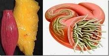 Użyj tych 2 składników, aby usunąć tłuszcz i pasożyty z twojego ciała