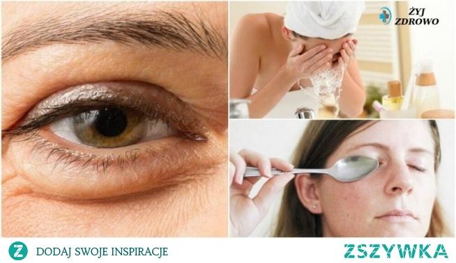 5 wskazówek, aby zmniejszyć, usunąć worki pod oczami