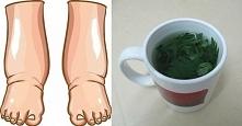Najpotężniejszy, naturalny środek na opuchnięte nogi