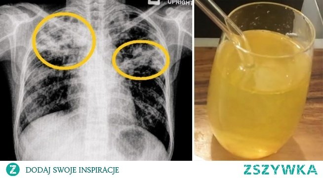 5 środków zaradczych, które usuwają śluz i flegmę z płuc