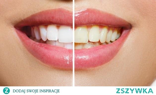 9 domowych sposobów na wybielenie zębów