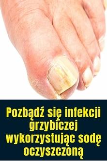 Pozbądź się infekcji grzybi...