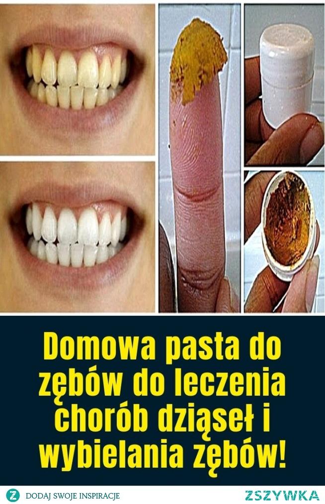 Domowa pasta do zębów do leczenia chorób dziąseł i wybielania zębów!