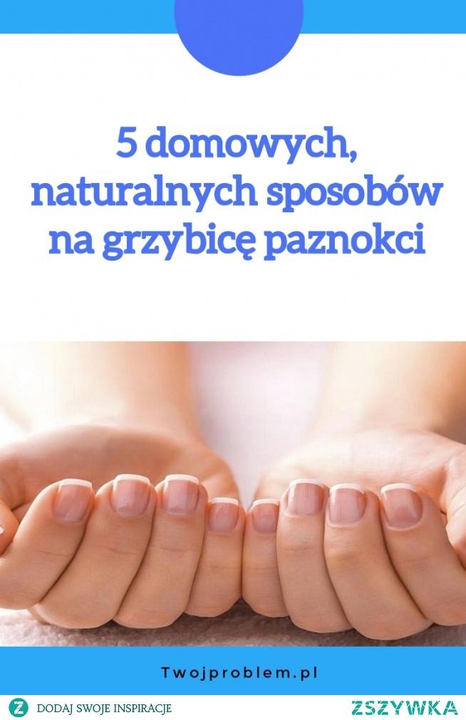 5 domowych, naturalnych sposobów na grzybicę paznokci