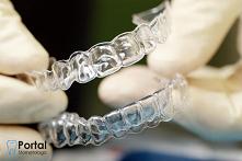 Aparat ortodontyczny nakład...