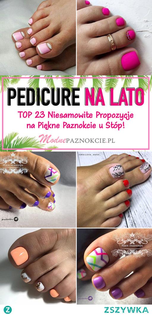 Modny Pedicure na Lato – TOP 23 Niesamowite Propozycje na Piękne Paznokcie u Stóp!