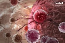 Rak kolczystokomórkowy skóry