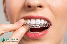 Czy wybielanie zębów jest s...