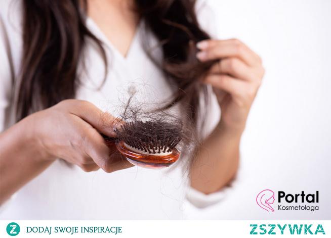 Karboksyterapia w łysieniu i wypadania włosów