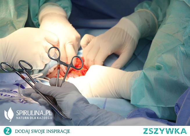 Operacja bariatryczna