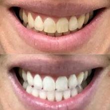 Paski wybielające zęby WHIT...